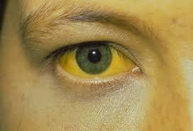 Contoh kulit dan mata penderita hepatitis